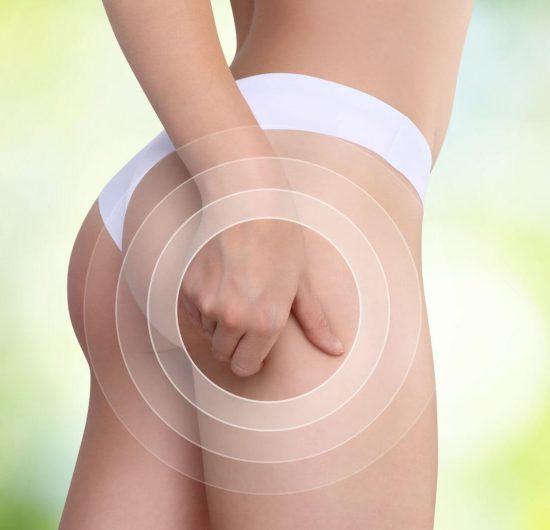 remedes pour eliminier cellulite