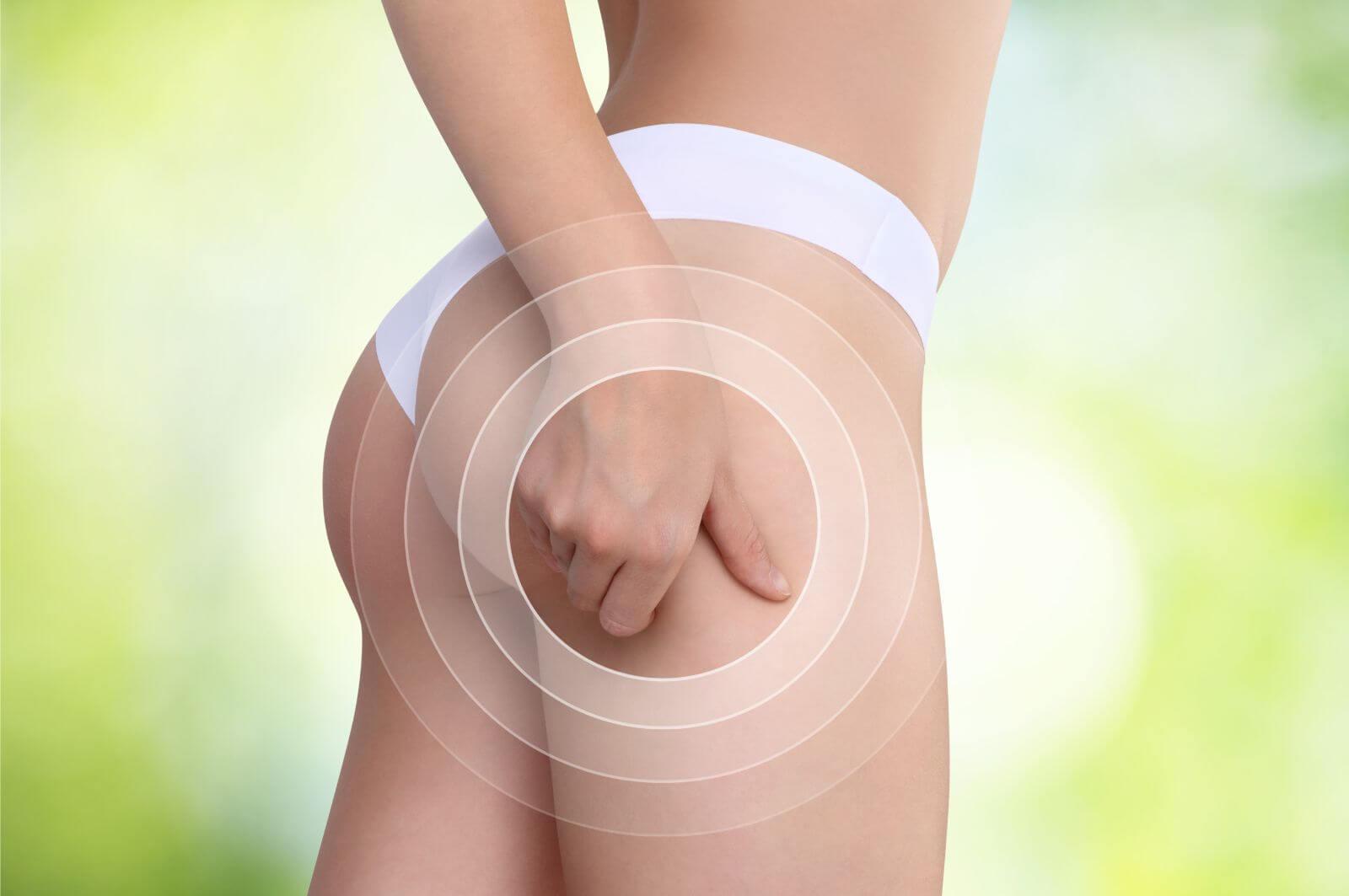 10 remèdes naturels pour éliminer la cellulite
